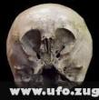 A csillaggyermek koponya